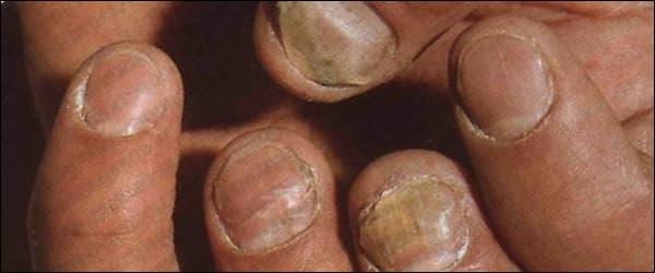 лечение грибка ногтей прополисом